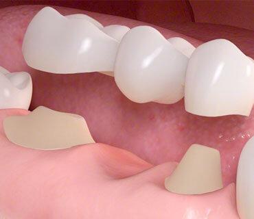 Protesi dentaria Roma