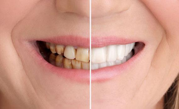 Sbiancamenti Dentali Roma