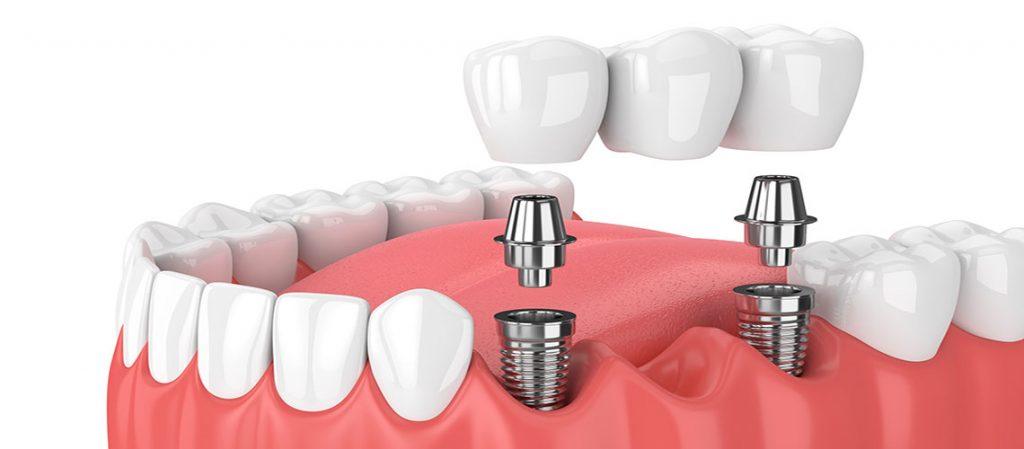 Implantologia ed estetica