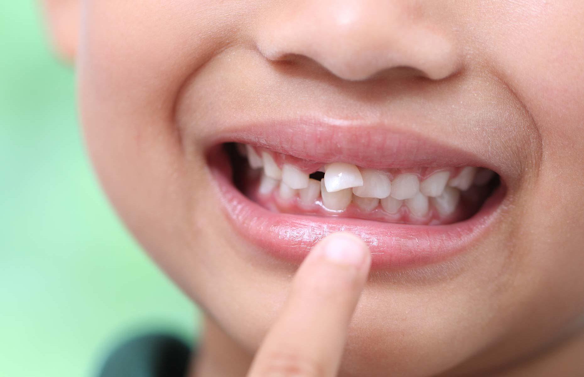 Mantenitore di spazio per i denti il tuo bambino ne ha bisogno